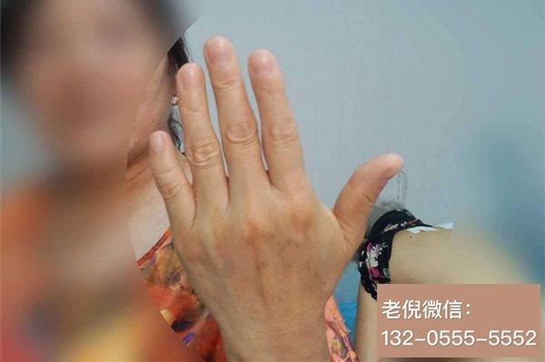老倪膏药表示  手指局部麻木 也是要注意的  发现了就要检查和调理